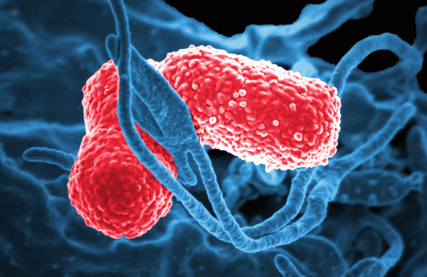 Multidrug-resistant Klebsiella pneumoniae gram-negative bacteria are known to cause severe hospital-acquired infections. Image: David Dorward, PhD, National Institute of Allergy and Infectious Diseases